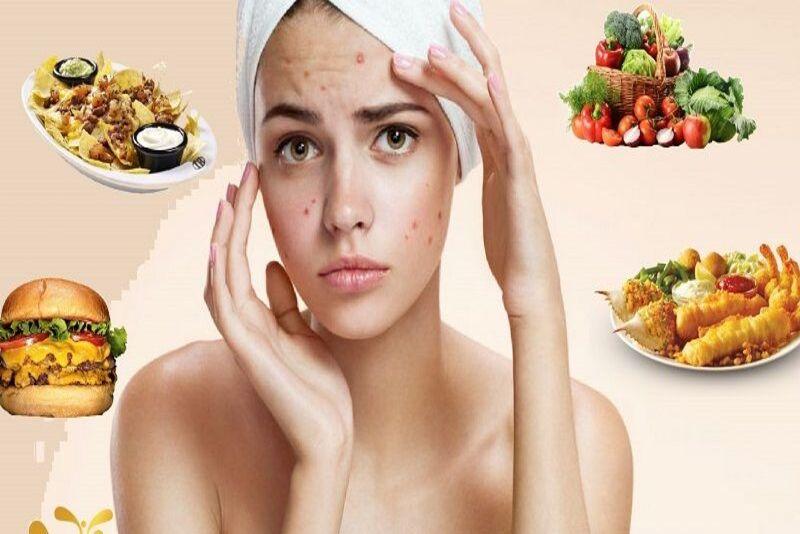 """trị mụn nhờ chính những thực phẩm hấp thụ mỗi ngày trở thành ưu tiên hàng đầu. Vậy ăn gì để mụn không còn là một nỗi lo với mỗi người? Bài viết dưới đây sẽ cung cấp cho bạn """"tất tần tật"""" những thông tin về ăn gì trị mụn với mọi tình trạng cơ thể."""